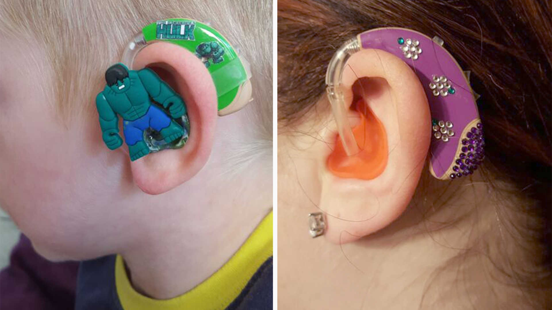 Designer Hearing Aids For Kids Thanks To This Supermom